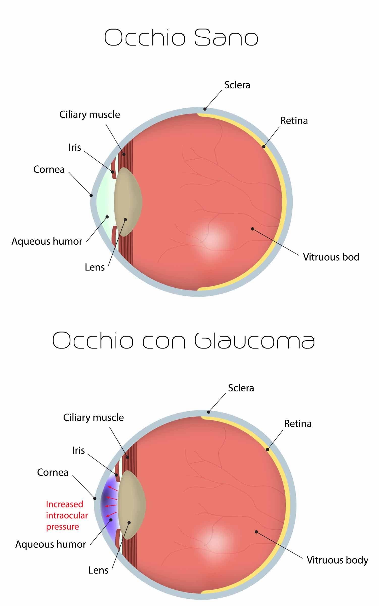 Glaucoma-e-occhio-sano