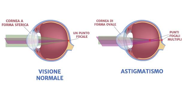 lombardi_astigmatismo